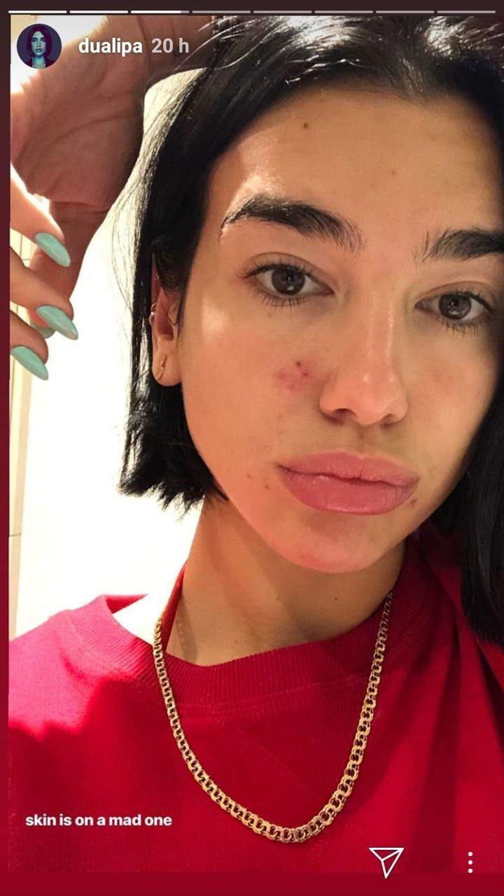 Así luce el rostro de Dua Lipa sin maquillaje. (Foto: Instagram)