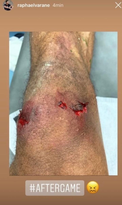 Raphael Varane publicó esta foto de su rodilla en Instagram.