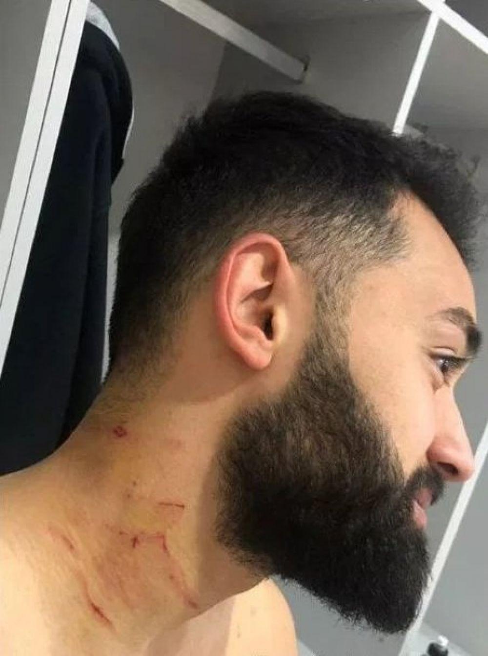 Futbolista sufrió cortes en el cuello. (Foto: captura de pantalla)