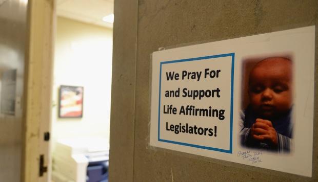 La tensión y la protesta surgieron después de que la Cámara de Representantes de Missouri aprobó un proyecto de ley para prohibir los abortos después de 8 semanas de embarazo. (Foto: AFP)