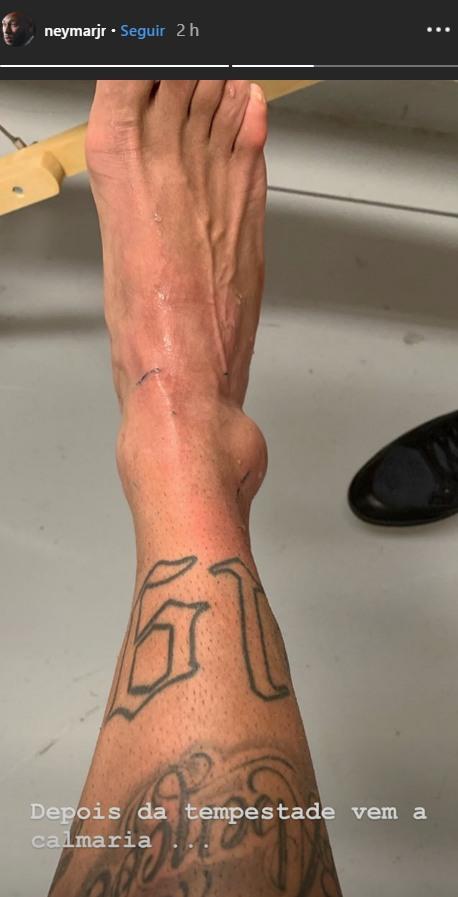 Así quedó el tobillo de Neymar. (Foto: Instagram)