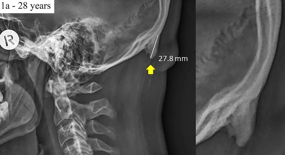 El nuevo hueso que sostiene el cráneo ante uso de smartphones. (Foto: David Shahar/Nature)