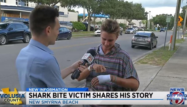 Joven surfista sufrió ataque de tiburón en la playa de New Smyrna. Le dieron 19 puntos de sutura en la mano para cerrar la herida. (Foto: Captura)