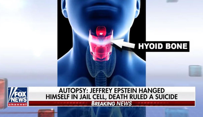 Jeffrey Epstein se ahorcó, según información de Fox NewsTimes. (Foto: Captura)