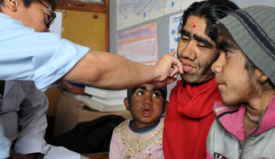 Una familia en Nepal que sufre de una rara condición genética en la que crece el pelo en toda la cara. (Foto: AFP)